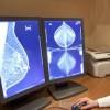 """Asl: """"Adesioni elevate, lo screening mammografico funziona eccome"""""""